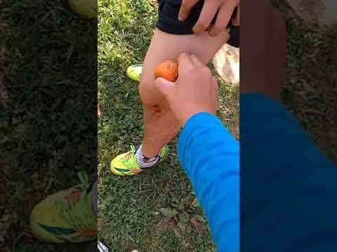 Eczema em pregos de mãos de uma foto