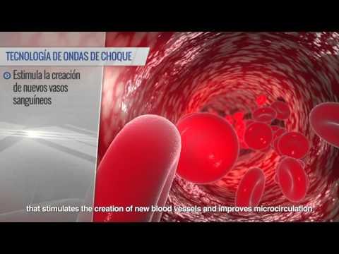 La nutrición en la radioterapia de próstata
