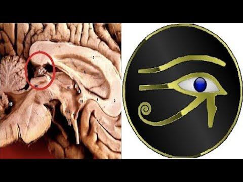 Die Kreise unter den Augen von der Erkrankung der Leber