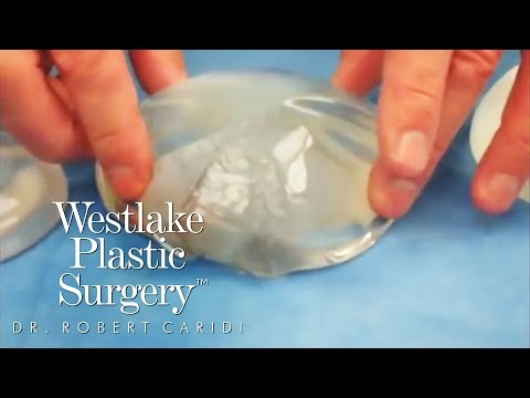 Educational Video: Saline vs. Silicone Implants
