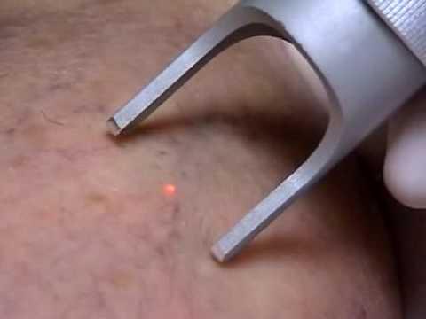 Durata di ricevimento di un varfarin a una trombosi di vena