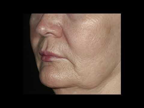 Obagi Elastiderm Eye Cream & Facial Serum