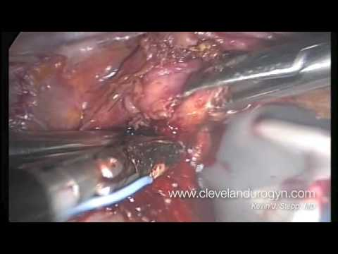 Laparoskopowe usunięcie macicy i jajników - część 3 z 4