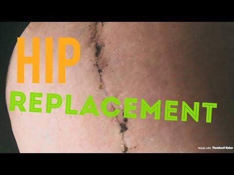Migliore pomata per il dolore al ginocchio