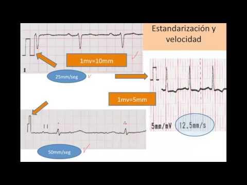 Hipertensión 3 Paso 3