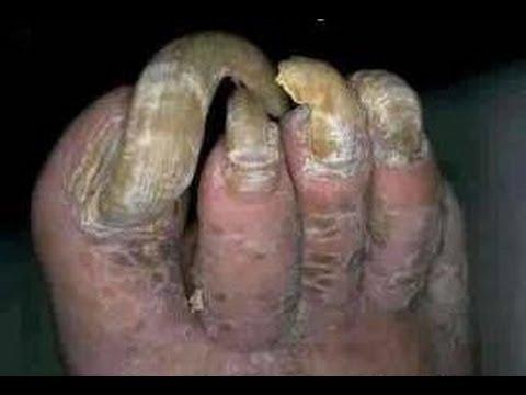 Que curar el hongo los dedos de las manos