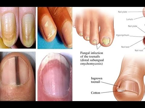 Tumakbo up nail treatment