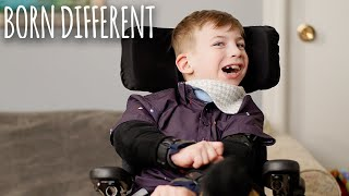 The Boy Who Can't Stop Biting Himself | BORN DIFFERENT