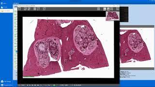Uploading Scanned Images to Proscia Pathology Cloud