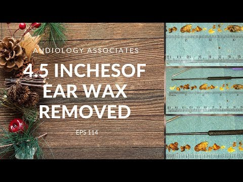 4.5 INCHES OF EAR WAX REMOVED - EP 114 Mp3