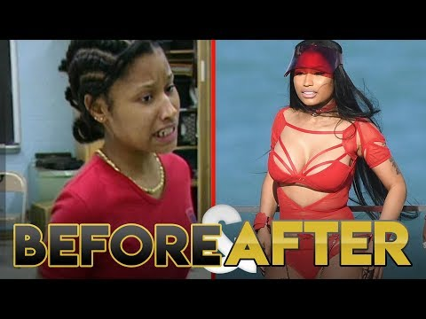 nicki minaj before and after transformation plastic surgery