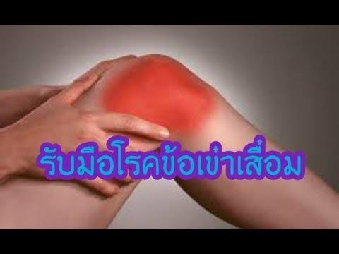 ทั้งหมดของ thrombophlebitis หนอง