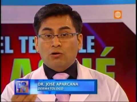 Tratamiento de cicatrices de acné en Dr. TV
