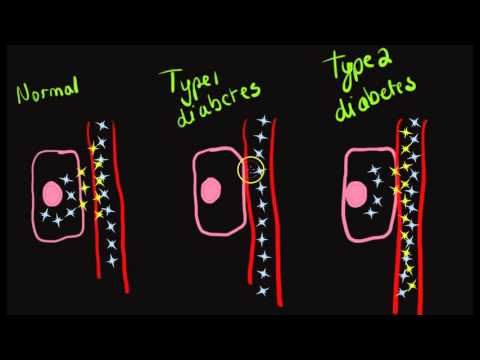 Salz mit Diabetes Einsatz
