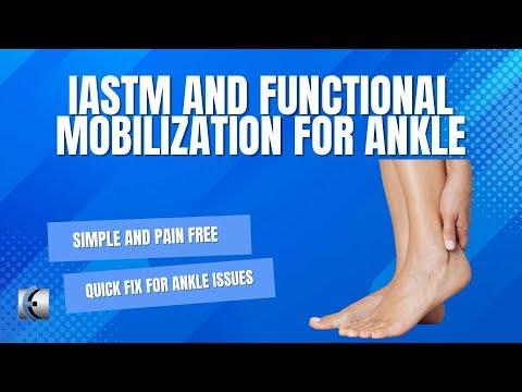 Mi történik az artritisz kezével