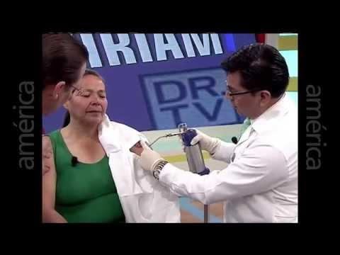 Caso real de Queloide presentado en Dr.Tv con el Dr. Aparcana – 6 años de experiencia en queloide