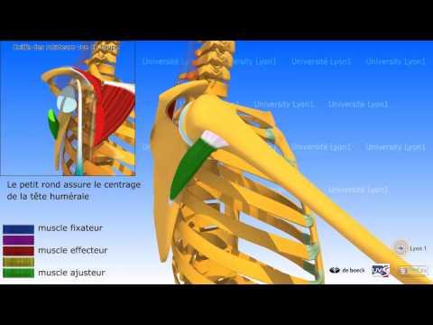 La imagen de la cadera del paciente