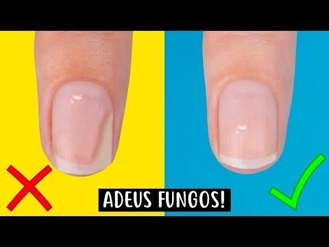 Como efetivamente tratar um fungo de pernas