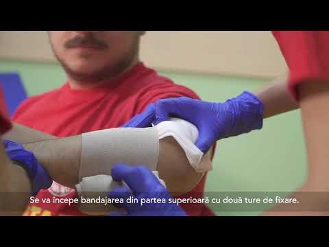Inflamația ganglionilor limfatici din articulația cotului