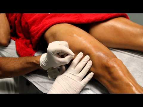 Dolor lumbar agudo que se irradia hacia la pierna al caminar