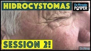 "Hidrocystomas on ""Mr. Frack"" Session 2!"