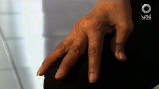 Diálogos en confianza (Salud) - ¿Qué es la artritis?