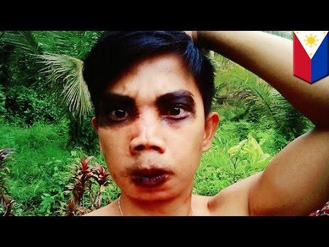 Mayroon akong wrinkles lamang sa kanyang kaliwang pisngi