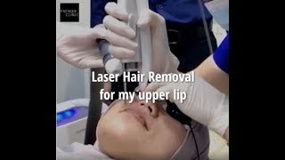 PATIENT STORY: LASER HAIR REMOVAL