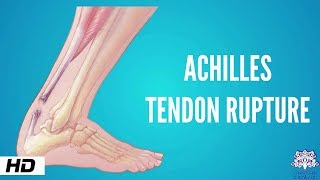 Achilles tendon rupture, Causes, Signs and Symptoms, Diagnosis and Treatment