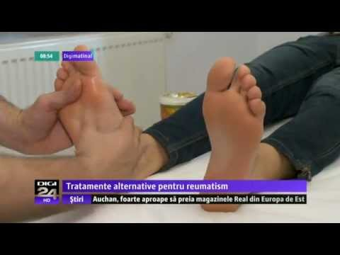 Chirurgul tratează artrita