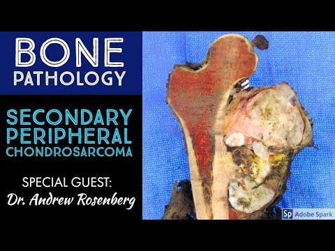 Collo osteocondrosi può abbinare ganascia