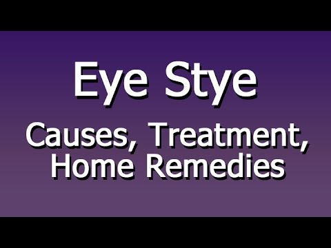 Video Eye Stye - Causes, Treatment, Home Remedies