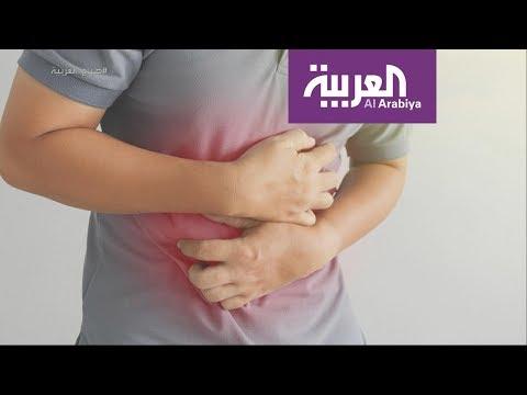 العرب اليوم - شاهد: السبب الحقيقي وراء انتفاخ البطن وكيفية التخلص منه