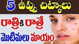 5 ఉప్పు చిట్కాలు   రాత్రికి రాత్రే మొటిమలు మాయం    Get Rid of Pimples Over Night    Beauty Tips