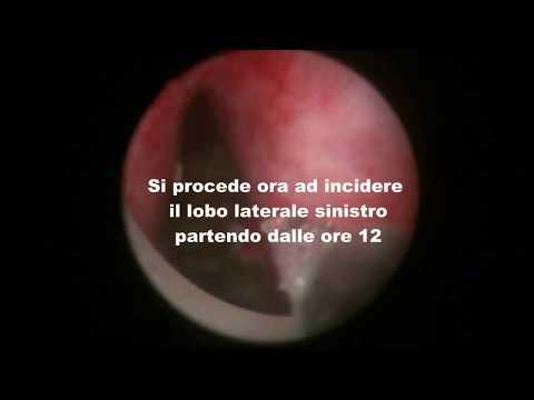 Trattamento standard di prostatite acuta