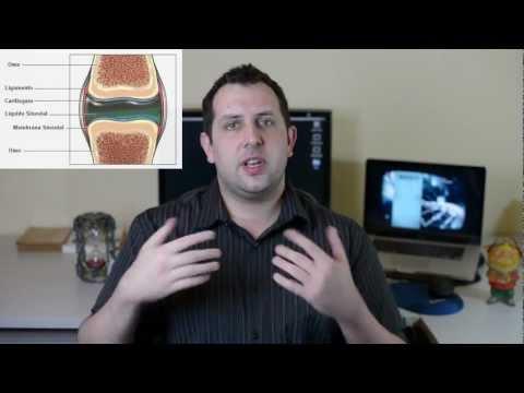 Trattamento non convenzionale di osteoartrite delle articolazioni dellanca