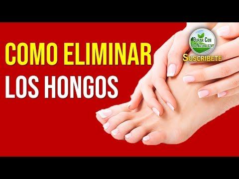 Como usar klotrimazol del hongo de las uñas