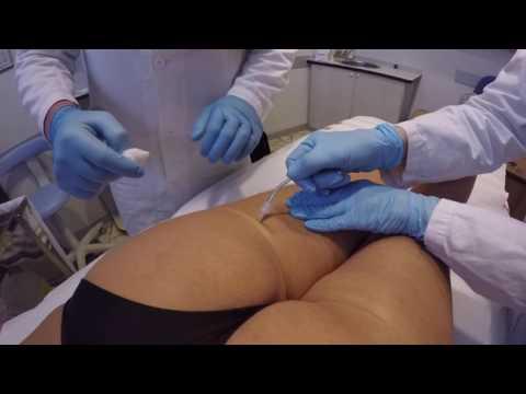 Intorpidimento delle guance con osteocondrosi cervicale