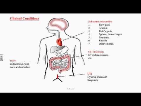 Vita sessuale dopo lintervento chirurgico per adenoma prostatico