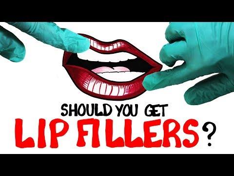 Are Lip Fillers a Good Idea?