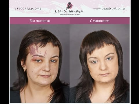 Белорусский крем от веснушек и пигментных пятен