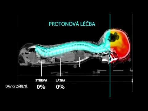 Známky difúzní změny v prostatě, která je