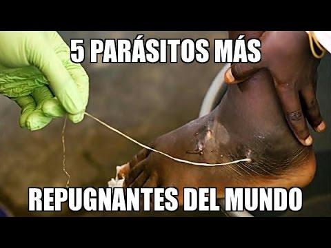 Palatandaan ng parasites sa katawan sa mga bata