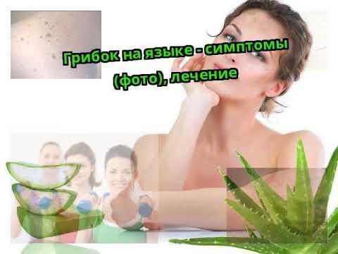Грибок на языке - симптомы (фото), лечение