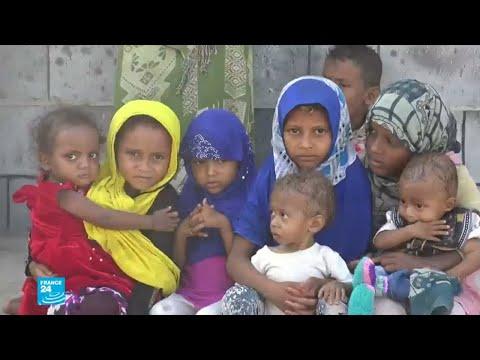 العرب اليوم - شاهد: الأمم المتحدة تؤكّد أن الأزمة الإنسانية في اليمن هي الأسوأ في العالم