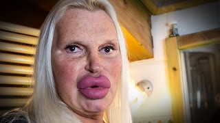 האישה הזו השקיעה עשרות אלפי שקלים על ניתוחים פלסטיים ולא מתכוונת לעצור >>