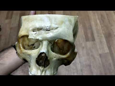 Skull anatomy (interior cranium and sutures)