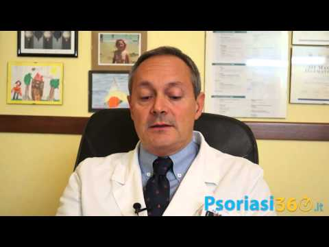 Uso di carbonato di sodio allatto di cura di psoriasi