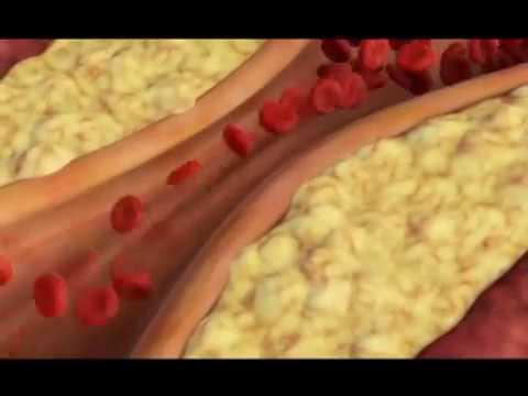 1 stupnja hipertenzija tablete