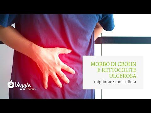 Morbo di Crohn e rettocolite ulcerosa: quale dieta? - Pillole di nutrizione